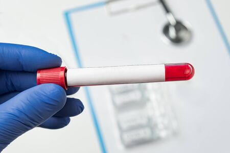 microbiologist holds tube with blood with blank label for your text. Copy space. Mock up. Archivio Fotografico