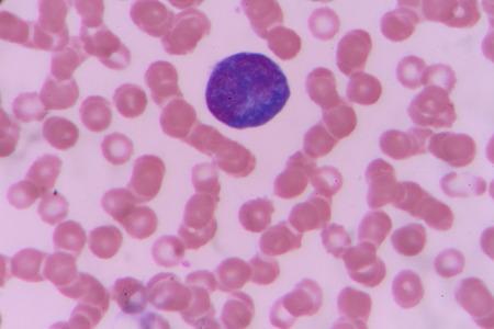 atypical lymphocyte