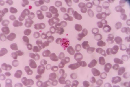 plasmodium: plasmodium