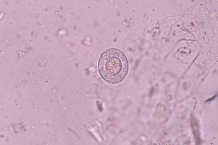nana: Hymenolepis nana
