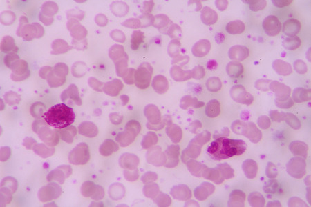 neutrophils: complete blood count Stock Photo