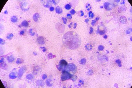 acyclovir: multinucleated giant Stock Photo