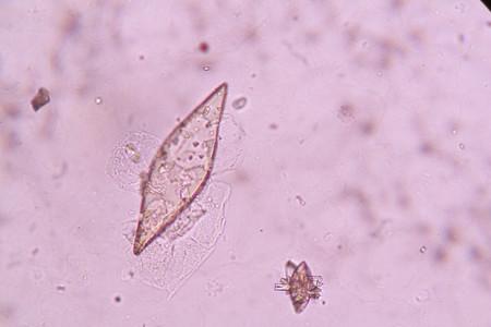 uric: crystals in urine sediment