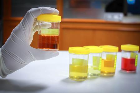 Medical urine test Stock Photo