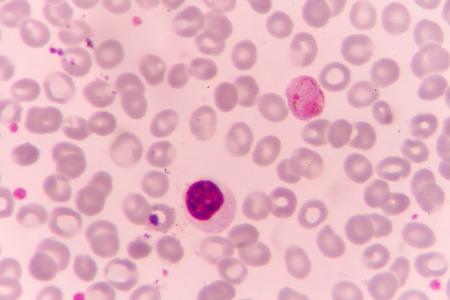 parasite: Malaria parasite P. vivax
