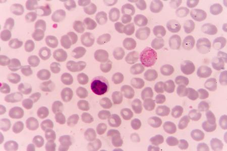 malaria: Malaria parasite P. vivax