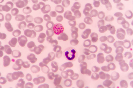 Malaria parasite P. vivax