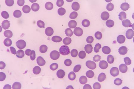 plasmodium: plasmodium malariae trophozoite (compactbasket form)