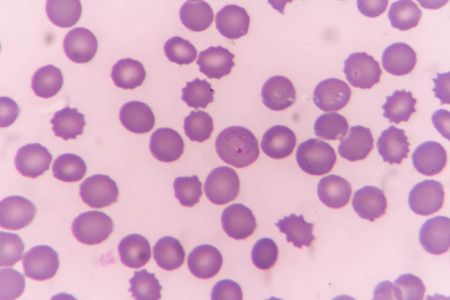 plasmodium: plasmodium malariae ring form state in fection of red blood cells