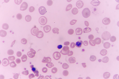 in slide blood smear show Nucleated red cell for complete blood count
