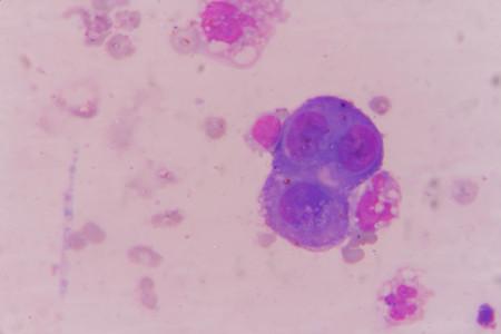 mesotheelcellen cel in pleuravocht