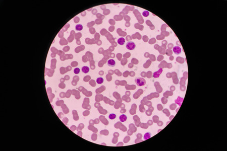 Blood smear shows large number of cancer leukemia cells(Blast cells)