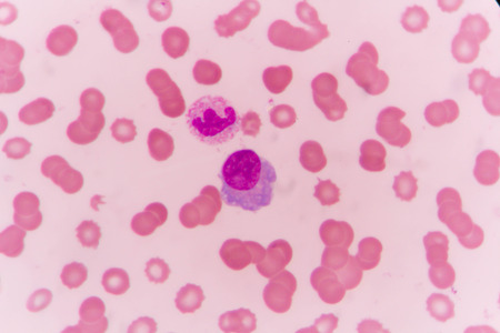 plasma cell and neutrophil human blood cell under microscope,complete blood count. Stock Photo