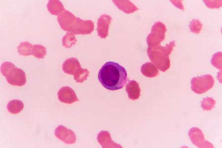 slide blood smear show plasme cell for complete blood count