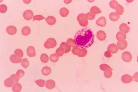 slide blood smear show white blood cell for complete blood count