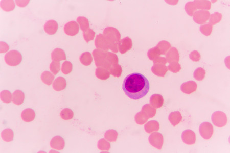 slide blood smear show plasma cell for complete blood count Stock Photo
