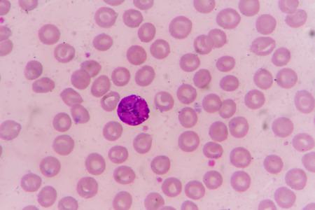 basophil: slide blood smear show basophil for complete blood count