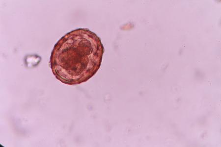 ascaris: Ascaris lumbricoides Stock Photo