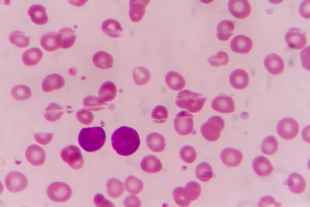 Blood smear showing large number of cancer leukemia cells(Blast cells)