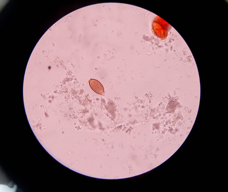 Trichuris trichiura egg in stool under microscopic