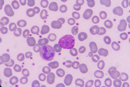 basophil: basophil on blood smear under microscopic