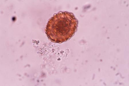 inhabits: Ascaris lumbricoides egg in stool under microscopic