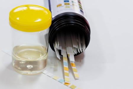 specimen testing: Urine sample with reagent strip test urinalysis in laboratory