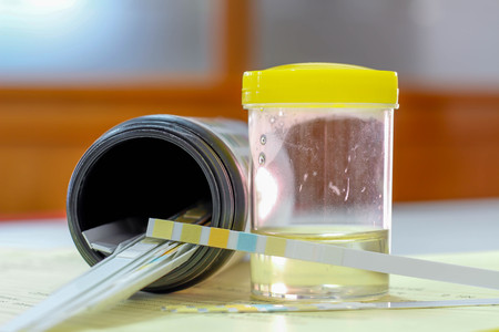 Urine sample with reagent strip test urinalysis in laboratory