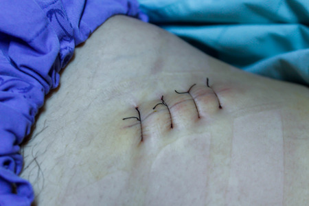 Scars after appendectomy.