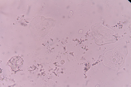 Epithelial Cells with bacterial in urine
