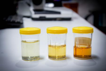 Échantillon d'urine Banque d'images