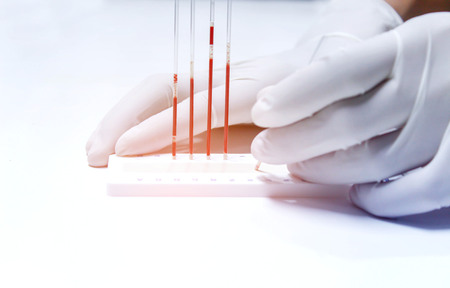 hematology: blood sample for hematocrit testing Stock Photo