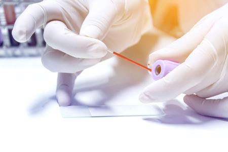 blood sample for hematocrit testing Stock Photo