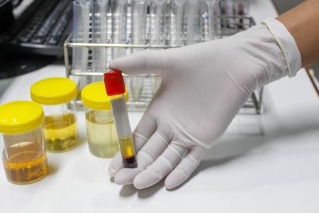 hematology: hand holding tube blood sample in labolatory Stock Photo