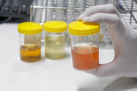소변 샘플 스톡 콘텐츠