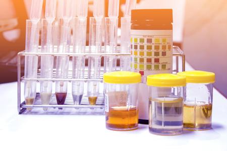 소변 검사 용 시약 스트립이있는 소변 샘플