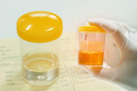 Urine sample  in laboratory
