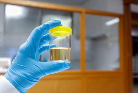 Doctor holding Urine sample in laboratory