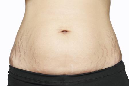 mujer celulitis: estr�as en vientre de la mujer asi�tica Foto de archivo