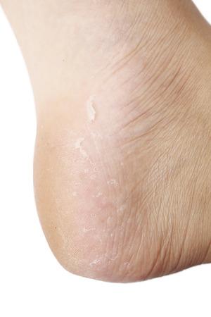 broken foot: dry skin texture detail of human foot