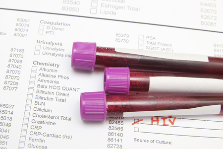 biochemical: Form the results of biochemistry blood tests Stock Photo