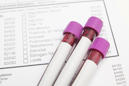 Form to fill in the results of biochemistry blood tests Stockfoto
