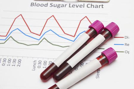 biochemistry: results of biochemistry blood tests Stock Photo