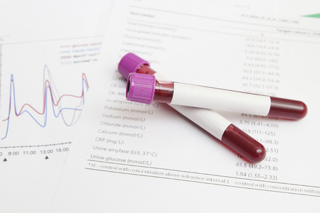 biochemistry: Form the results of biochemistry blood tests Stock Photo