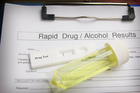 lab test: Drug test blank form with test kit and urine,focus on paper Stock Photo