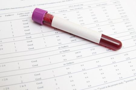 probeta: Formar los resultados de los análisis de sangre de la bioquímica Foto de archivo