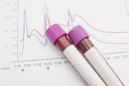 sample tray: Form the results of biochemistry blood tests Stock Photo