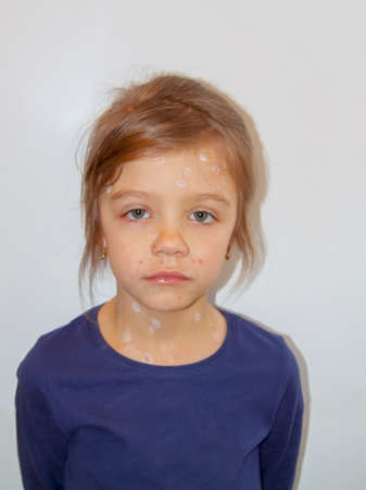 Sad little girl ill with varicella virus or chickenpox bubble rash on her face Stock Photo
