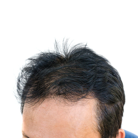 hormone  male: Point of focus lose ones hair glabrous baldy loss hairline men.