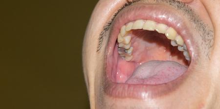 20 mit schlechte zähne Trotz Vorsorge